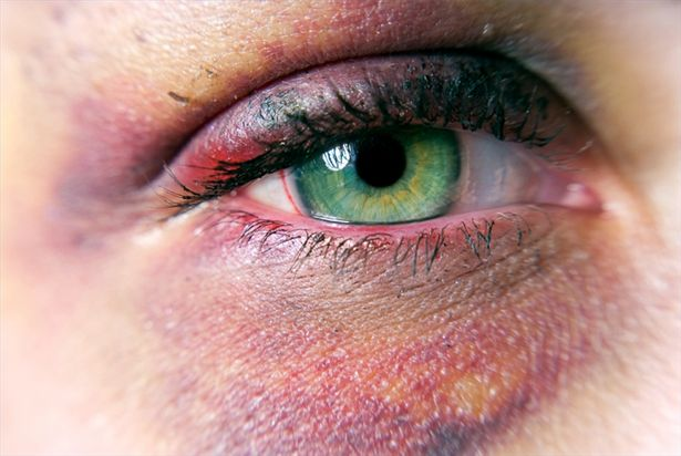 article-new-thumbnail_ehow_images_a02_2l_f3_treat-black-eye-bruise-800x800